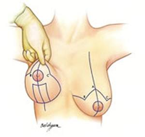 http://clinicadeos.com.br/wp-content/uploads/2016/07/levantar-mama.jpg